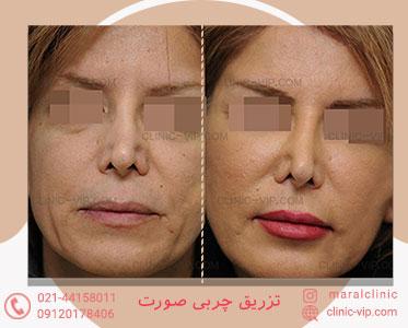 تزریق چربی به صورت زاویه سازی صورت