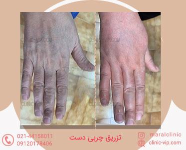 تزریق چربی به دست جوان سازی دست درمان چین و چروک دست