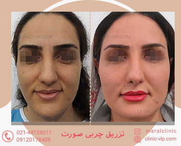 جوان سازی و تزریق چربی صورت