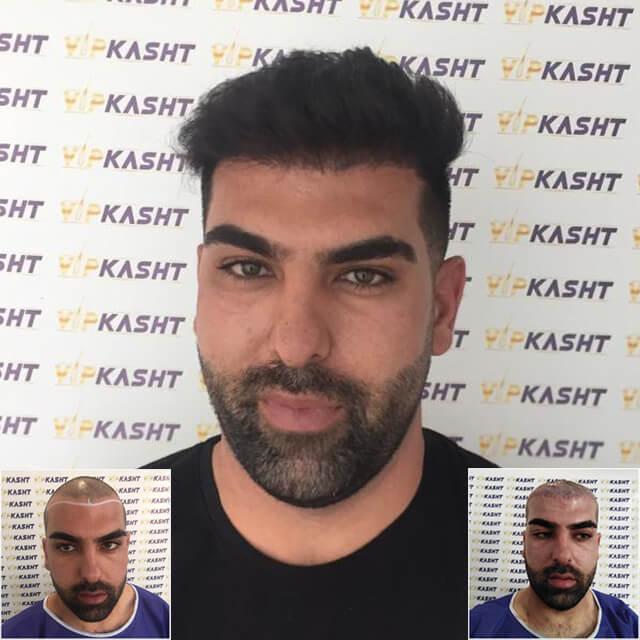 طبیعی ترین کاشت مو در کلینیک وی ای پی تهران کاشت مو طبیعی sut