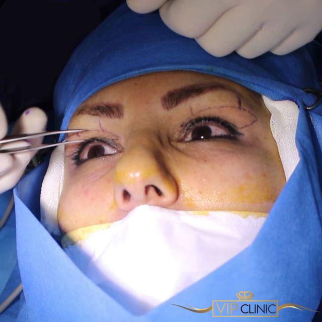 جراحی پلک در یک جلسه