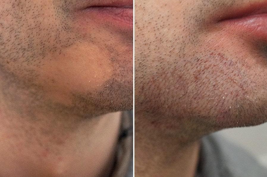کاشت ریش طبیعی بدون جراحی در یک جلسه