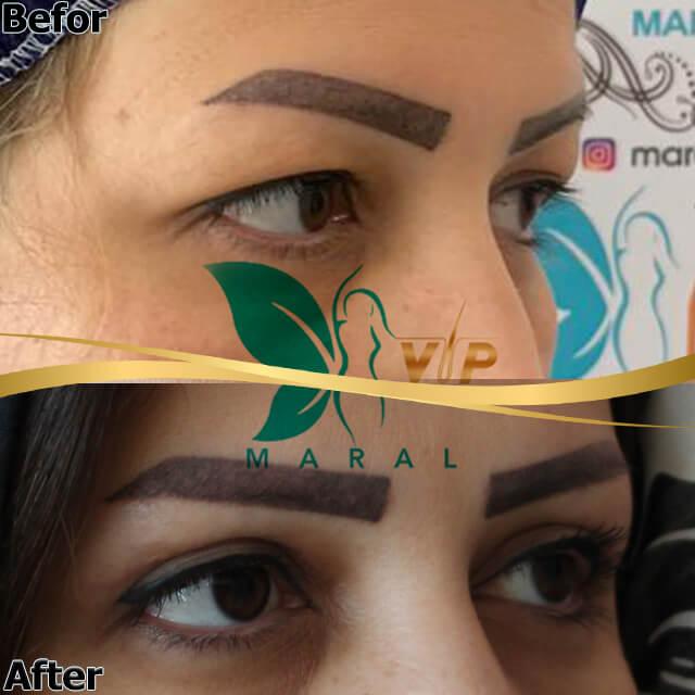 درمان افتادگی پلک در یک جلسه توسط دکتر مسعود مهدیه متخصص جراحی پلک
